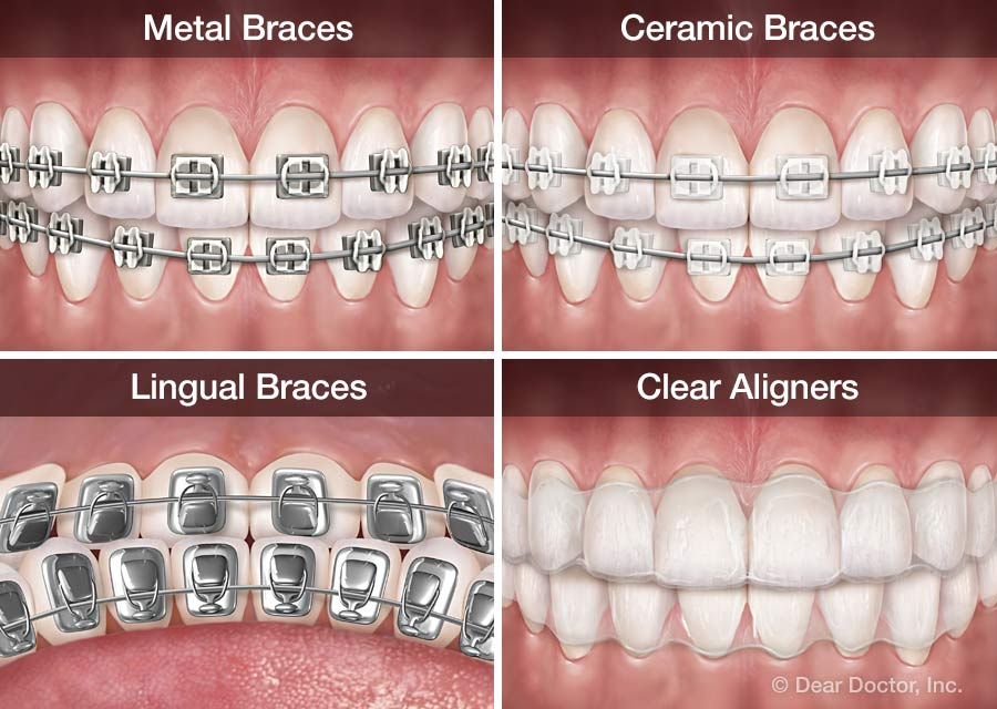 https://www.agokadental.com/storage/app/media/types-of-orthodontic-appliances.jpg